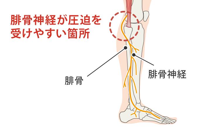 腓骨神経の解説図