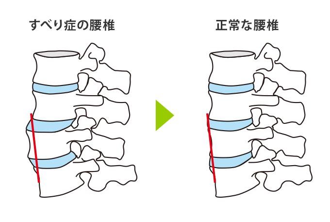 腰椎イラスト