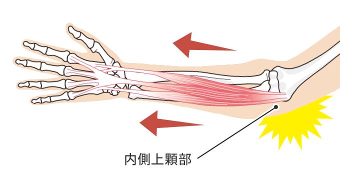 内側上顆部が付着する筋肉によって引っ張られて炎症を起こす図