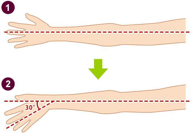 手首のロッキングチェック