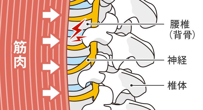 脊柱管サンドイッチの図