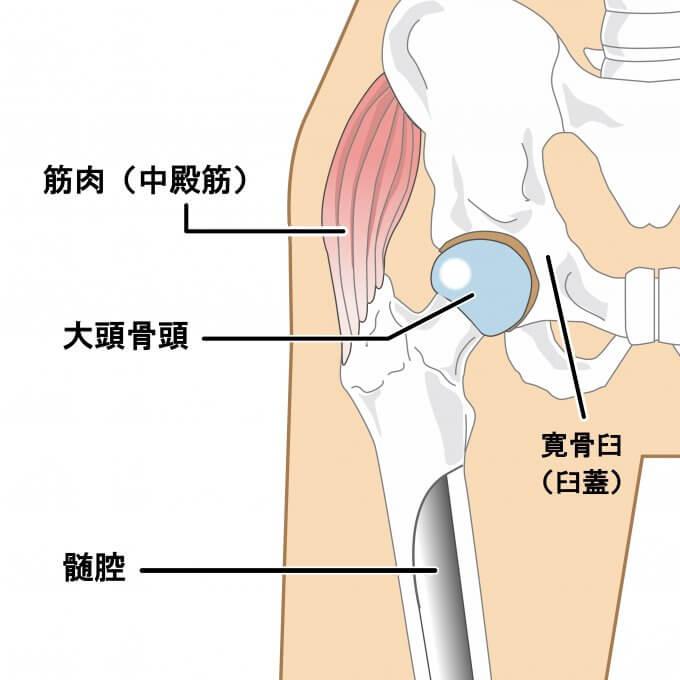大腿骨の内旋パターン